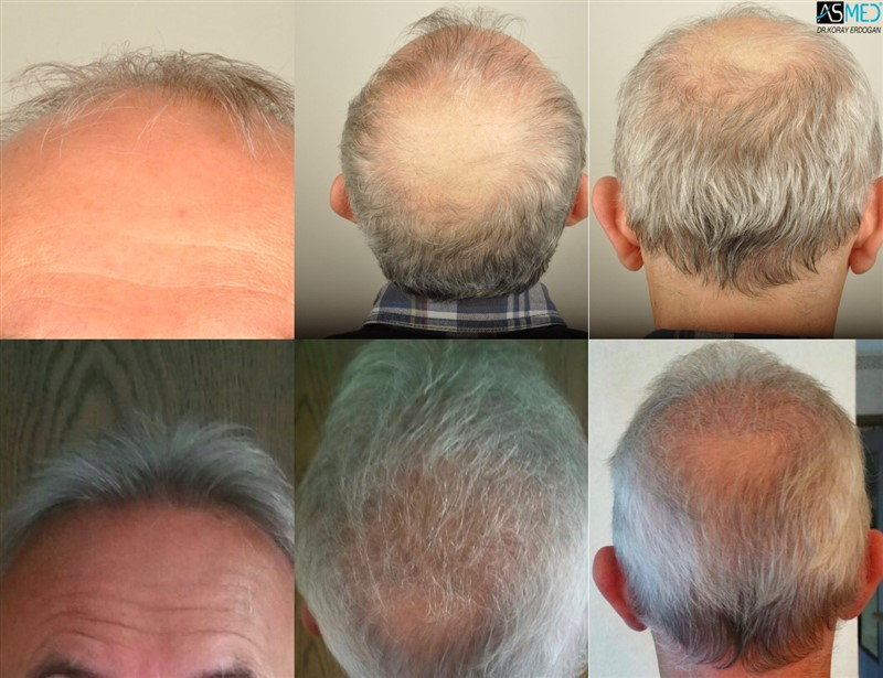 Dr Koray Erdogan -  4505 grafts FUE + 1505 grafts FUE