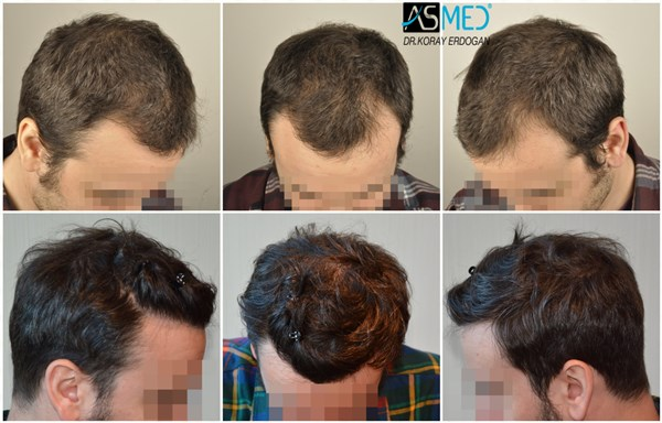 Dr Koray Erdogan - 4006 grafts FUE
