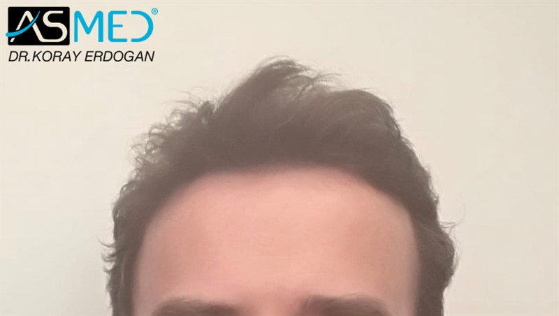 https://www.hairtransplantfue.org/asmed-hair-transplant-result/upload/Norwood5/4214-grafts-FUE/6months/AFT1.jpg