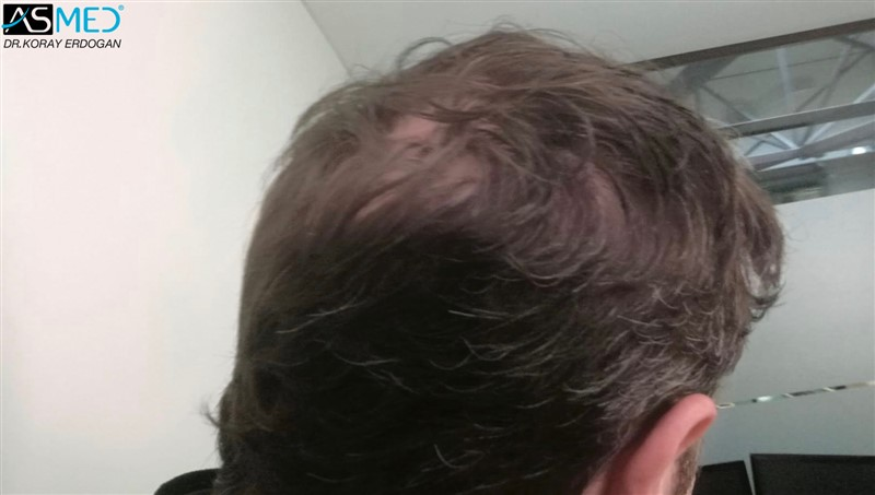 https://www.hairtransplantfue.org/asmed-hair-transplant-result/upload/Norwood5/4214-grafts-FUE/6months/AFT2.jpg