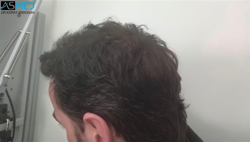 https://www.hairtransplantfue.org/asmed-hair-transplant-result/upload/Norwood5/4214-grafts-FUE/6months/AFT3.jpg