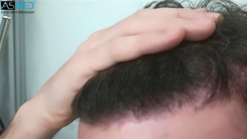 https://www.hairtransplantfue.org/asmed-hair-transplant-result/upload/Norwood5/4214-grafts-FUE/6months/AFT4.jpg