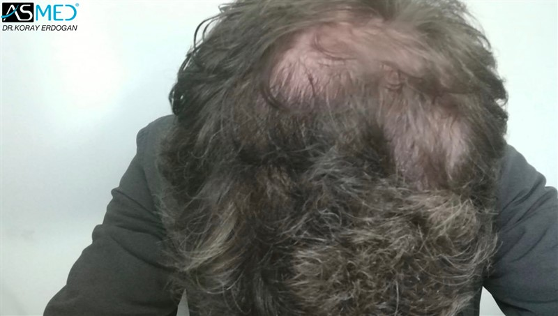https://www.hairtransplantfue.org/asmed-hair-transplant-result/upload/Norwood5/4214-grafts-FUE/6months/AFT5.jpg