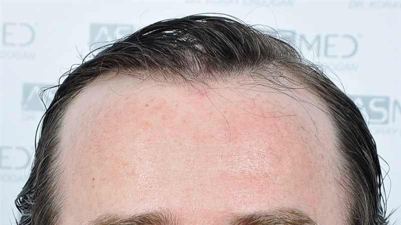 https://www.hairtransplantfue.org/asmed-hair-transplant-result/upload/Norwood5/4214-grafts-FUE/before/BEFORE1.jpg