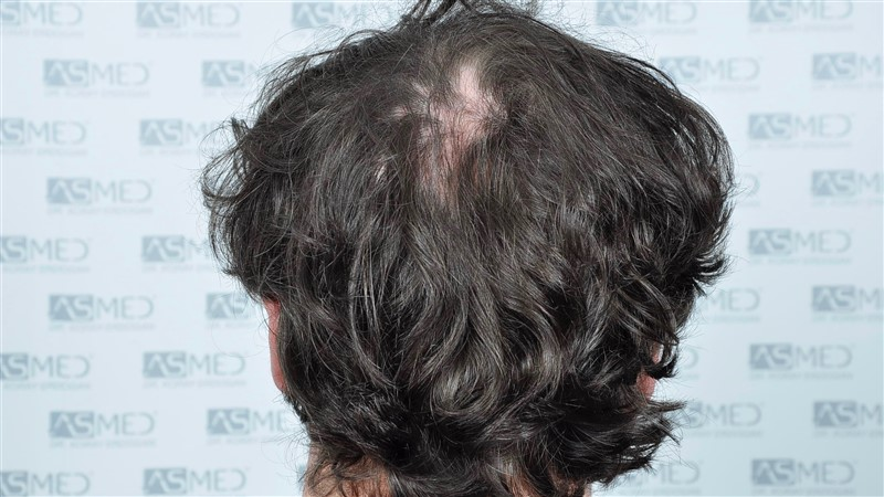 https://www.hairtransplantfue.org/asmed-hair-transplant-result/upload/Norwood5/4214-grafts-FUE/before/BEFORE2.jpg