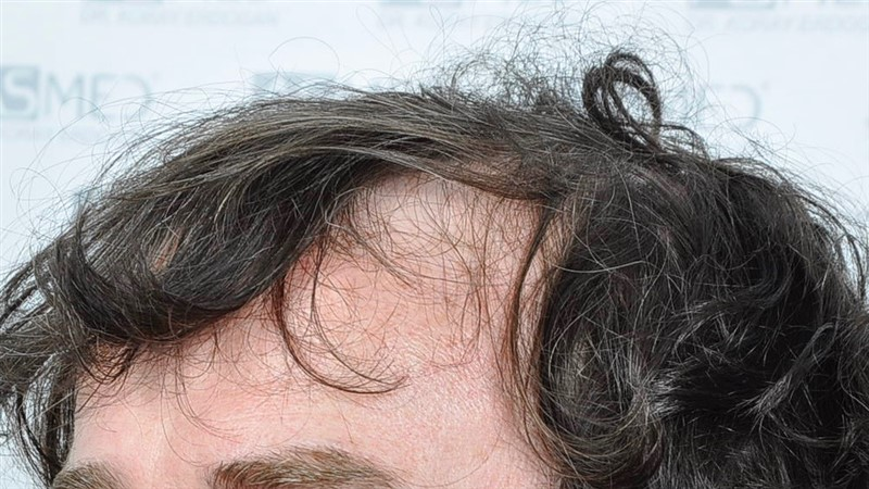 https://www.hairtransplantfue.org/asmed-hair-transplant-result/upload/Norwood5/4214-grafts-FUE/before/BEFORE4.jpg