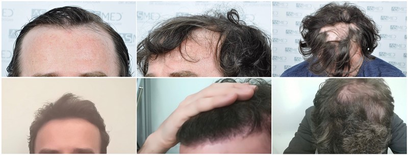 Dr. Koray Erdogan - 4214 Grafts FUE