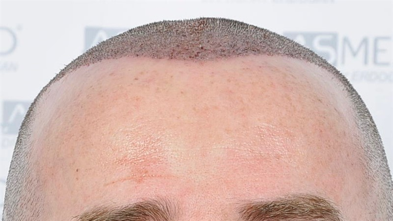 https://www.hairtransplantfue.org/asmed-hair-transplant-result/upload/Norwood5/4214-grafts-FUE/operation/OP1.jpg