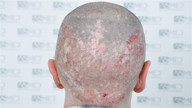 https://www.hairtransplantfue.org/asmed-hair-transplant-result/upload/Norwood5/4214-grafts-FUE/operation/OP2.jpg