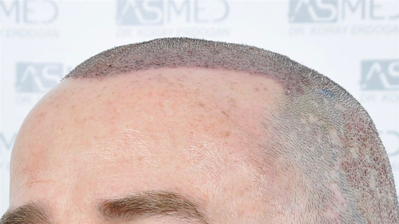 https://www.hairtransplantfue.org/asmed-hair-transplant-result/upload/Norwood5/4214-grafts-FUE/operation/OP4.jpg