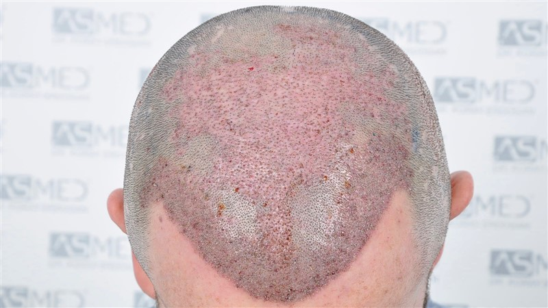 https://www.hairtransplantfue.org/asmed-hair-transplant-result/upload/Norwood5/4214-grafts-FUE/operation/OP5.jpg
