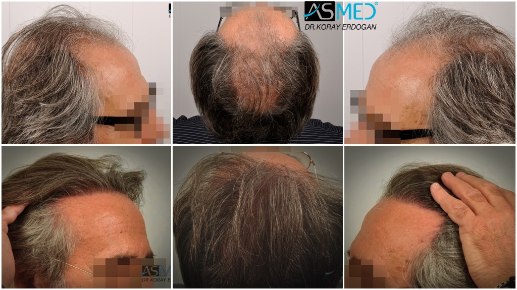 Dr Koray Erdogan - 4818 grafts FUE (2400 FUE + 2418 FUE)