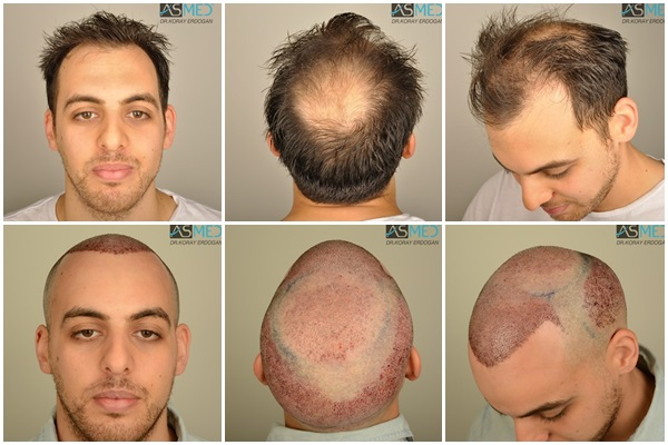 Dr Koray Erdogan - 5004 grafts FUE