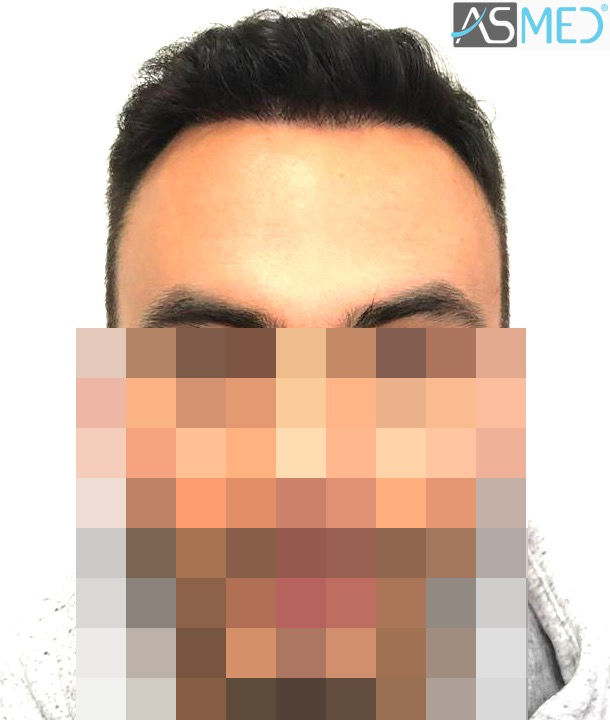 https://www.hairtransplantfue.org/asmed-hair-transplant-result/upload/Norwood5/5006-grafts-FUE-3/11months/1.jpg
