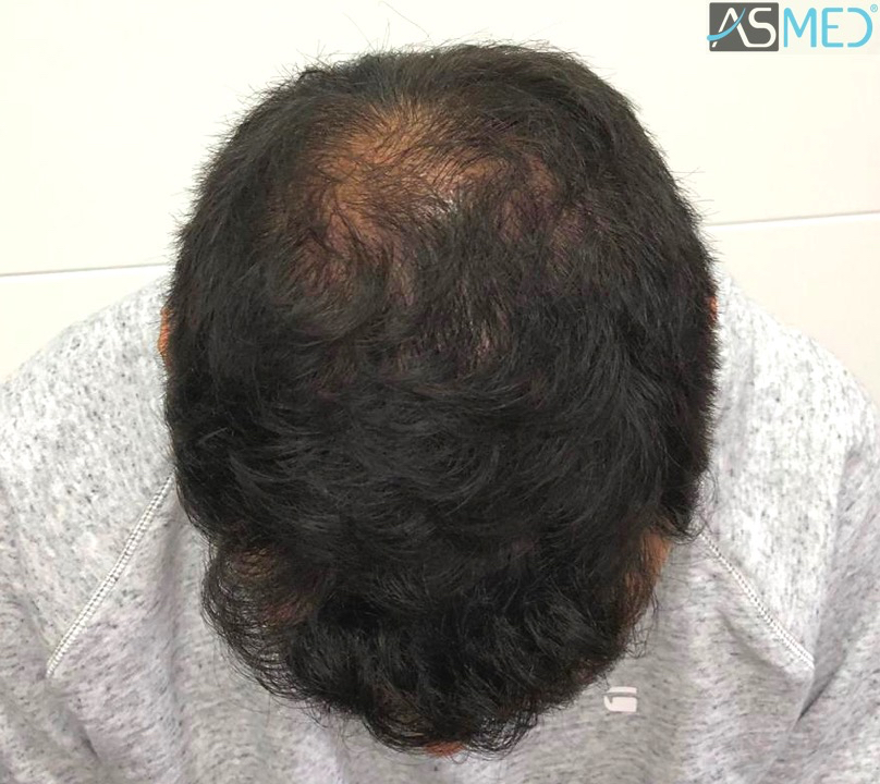 https://www.hairtransplantfue.org/asmed-hair-transplant-result/upload/Norwood5/5006-grafts-FUE-3/11months/2.jpg