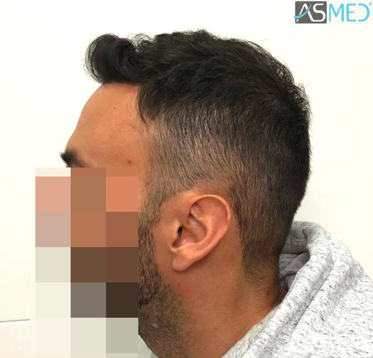 https://www.hairtransplantfue.org/asmed-hair-transplant-result/upload/Norwood5/5006-grafts-FUE-3/11months/3.jpg