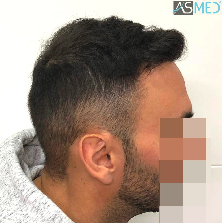 https://www.hairtransplantfue.org/asmed-hair-transplant-result/upload/Norwood5/5006-grafts-FUE-3/11months/4.jpg