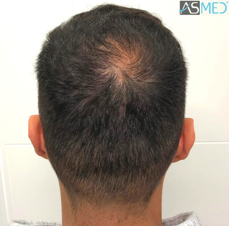 https://www.hairtransplantfue.org/asmed-hair-transplant-result/upload/Norwood5/5006-grafts-FUE-3/11months/6.jpg