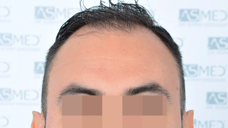 https://www.hairtransplantfue.org/asmed-hair-transplant-result/upload/Norwood5/5006-grafts-FUE-3/before/1.jpg