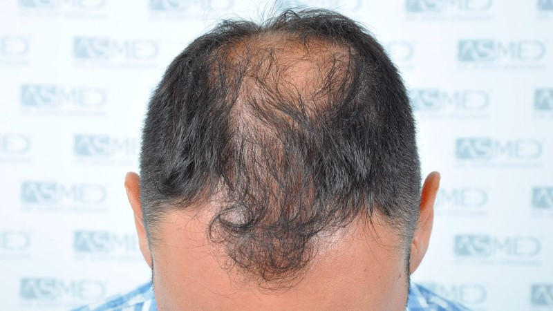 https://www.hairtransplantfue.org/asmed-hair-transplant-result/upload/Norwood5/5006-grafts-FUE-3/before/2.jpg