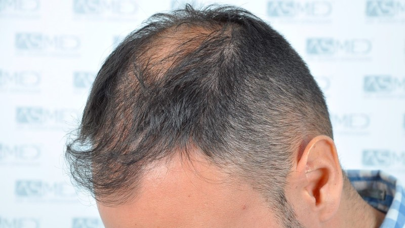 https://www.hairtransplantfue.org/asmed-hair-transplant-result/upload/Norwood5/5006-grafts-FUE-3/before/3.jpg
