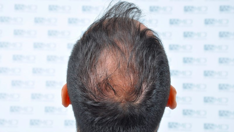 https://www.hairtransplantfue.org/asmed-hair-transplant-result/upload/Norwood5/5006-grafts-FUE-3/before/5.jpg