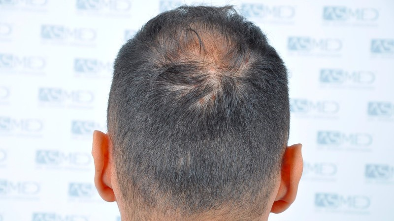 https://www.hairtransplantfue.org/asmed-hair-transplant-result/upload/Norwood5/5006-grafts-FUE-3/before/6.jpg