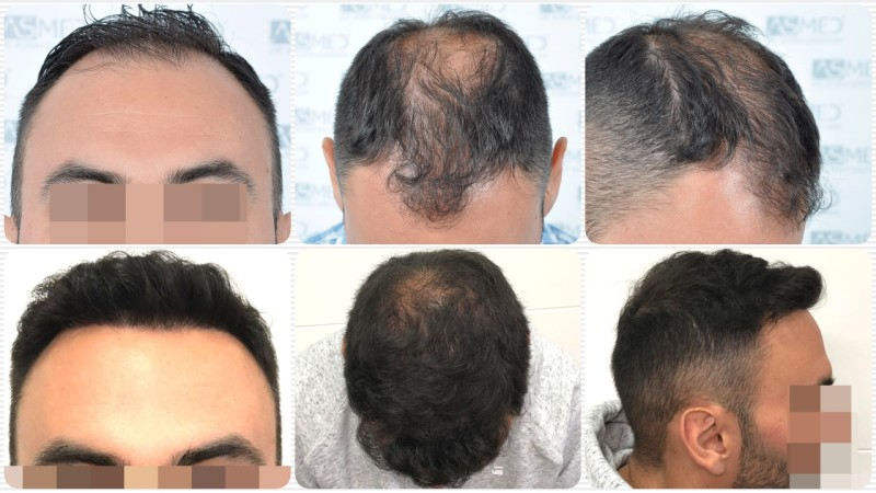 https://www.hairtransplantfue.org/asmed-hair-transplant-result/upload/Norwood5/5006-grafts-FUE-3/kolaj.jpg