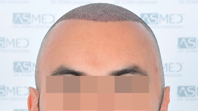 https://www.hairtransplantfue.org/asmed-hair-transplant-result/upload/Norwood5/5006-grafts-FUE-3/operation/1.jpg