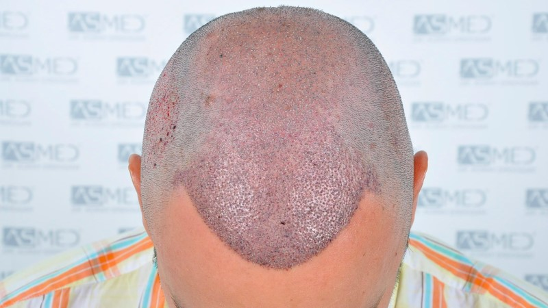 https://www.hairtransplantfue.org/asmed-hair-transplant-result/upload/Norwood5/5006-grafts-FUE-3/operation/2.jpg