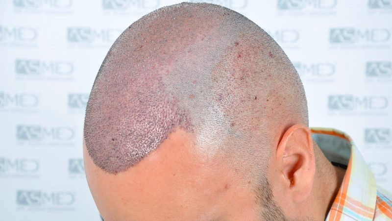 https://www.hairtransplantfue.org/asmed-hair-transplant-result/upload/Norwood5/5006-grafts-FUE-3/operation/3.jpg
