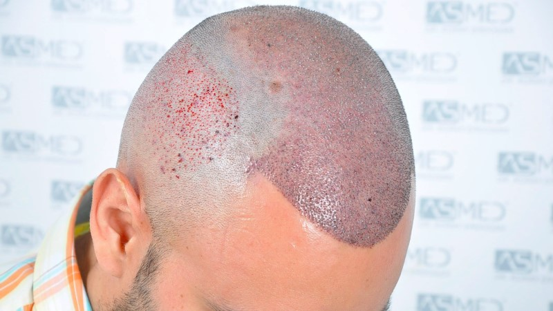 https://www.hairtransplantfue.org/asmed-hair-transplant-result/upload/Norwood5/5006-grafts-FUE-3/operation/4.jpg