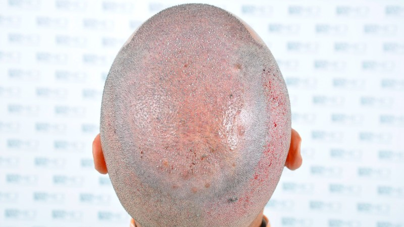 https://www.hairtransplantfue.org/asmed-hair-transplant-result/upload/Norwood5/5006-grafts-FUE-3/operation/5.jpg