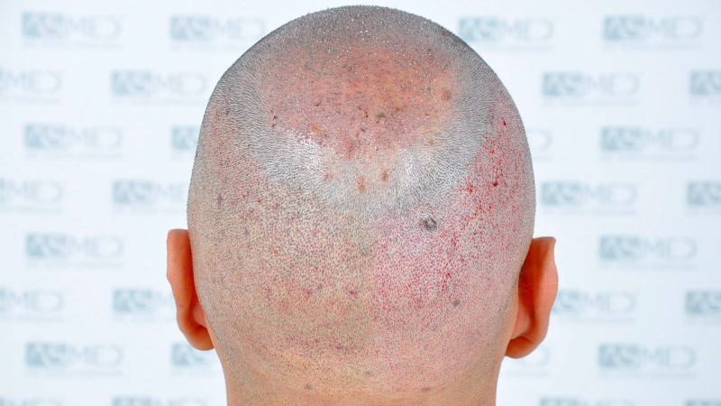 https://www.hairtransplantfue.org/asmed-hair-transplant-result/upload/Norwood5/5006-grafts-FUE-3/operation/6.jpg