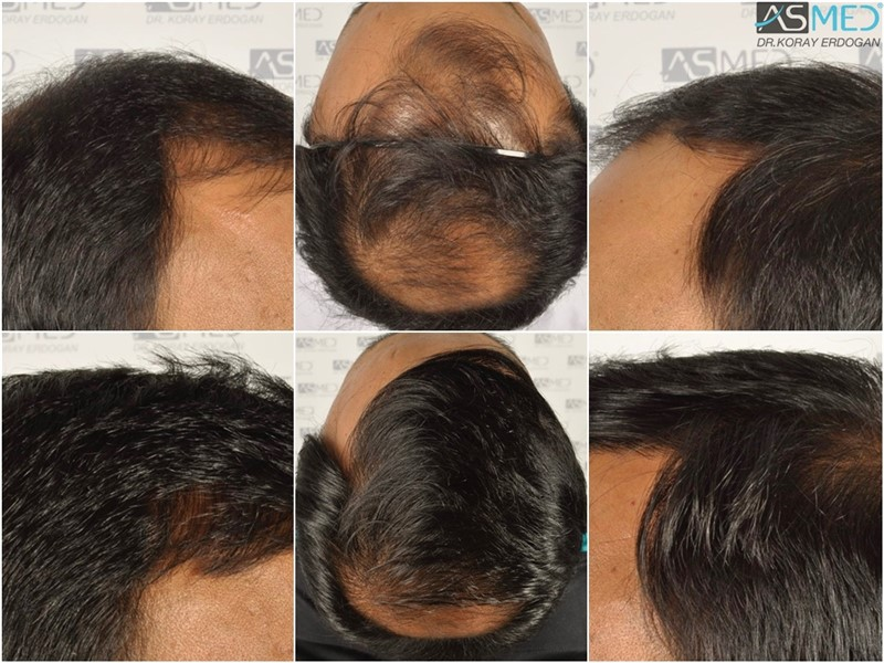 Dr Koray Erdogan -  5006 grafts FUE
