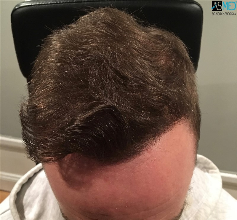 https://www.hairtransplantfue.org/asmed-hair-transplant-result/upload/Norwood5/5007-grafts-FUE/8months/V2_2aaa.jpg