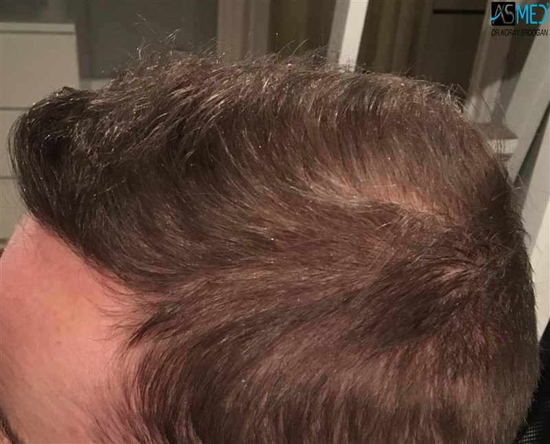 https://www.hairtransplantfue.org/asmed-hair-transplant-result/upload/Norwood5/5007-grafts-FUE/8months/V2_4aaa.jpg