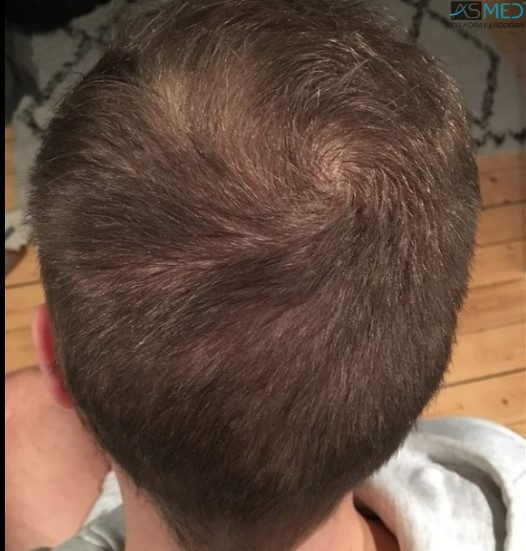 https://www.hairtransplantfue.org/asmed-hair-transplant-result/upload/Norwood5/5007-grafts-FUE/8months/after_new.jpg