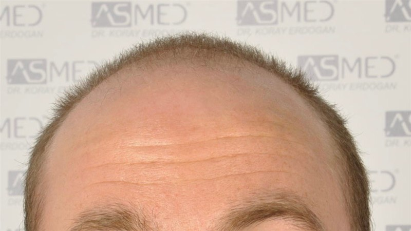 https://www.hairtransplantfue.org/asmed-hair-transplant-result/upload/Norwood5/5007-grafts-FUE/before/1.jpg