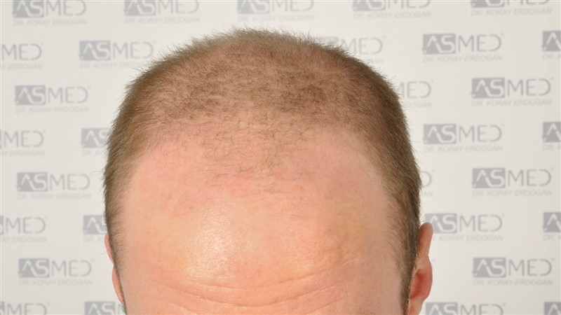 https://www.hairtransplantfue.org/asmed-hair-transplant-result/upload/Norwood5/5007-grafts-FUE/before/2.jpg