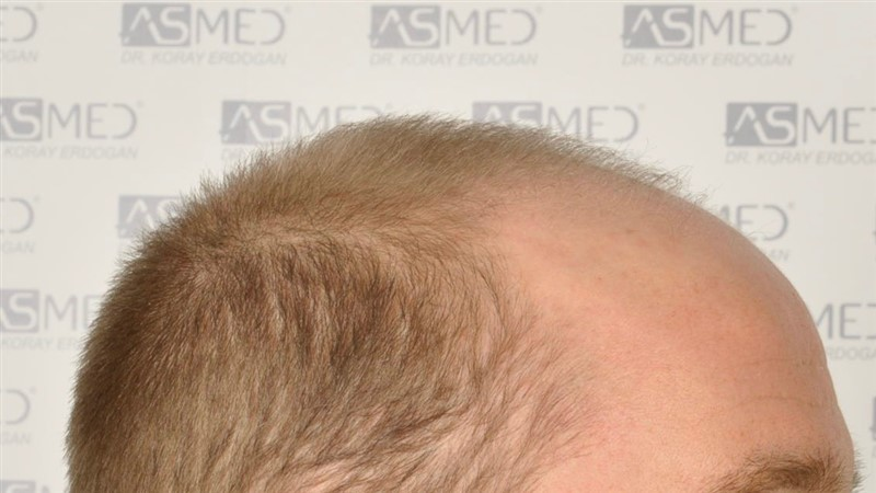 https://www.hairtransplantfue.org/asmed-hair-transplant-result/upload/Norwood5/5007-grafts-FUE/before/3.jpg
