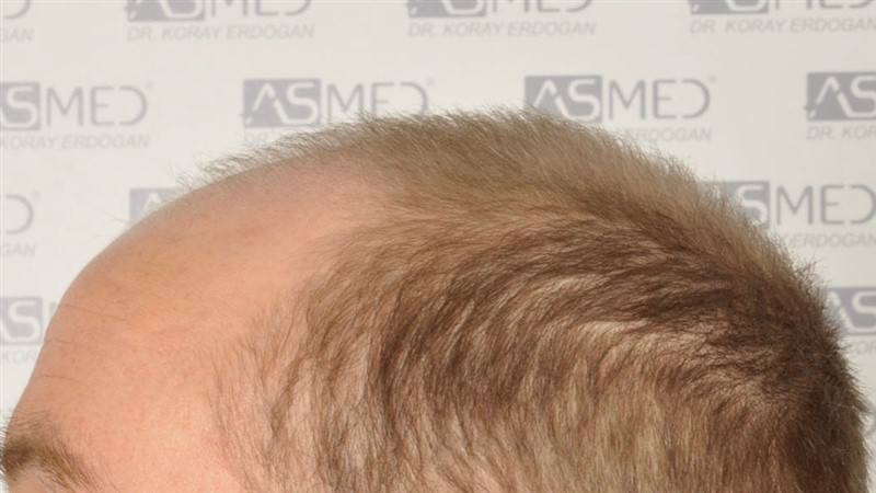 https://www.hairtransplantfue.org/asmed-hair-transplant-result/upload/Norwood5/5007-grafts-FUE/before/4.jpg
