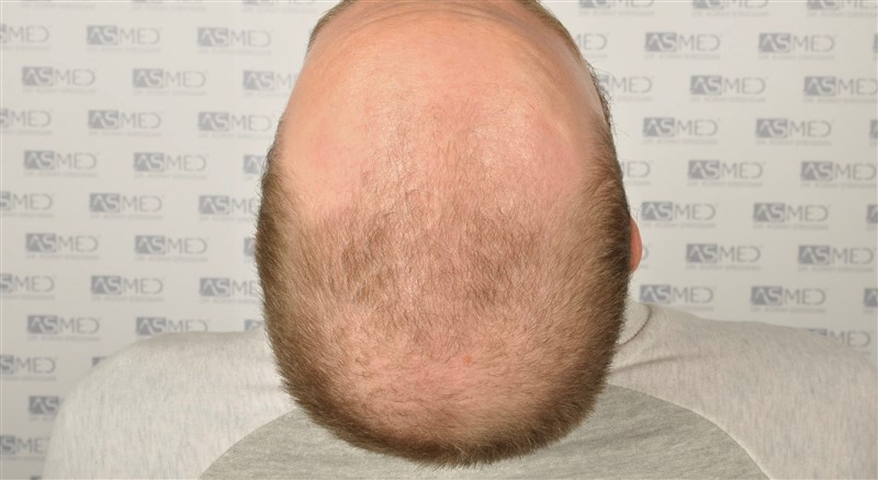 https://www.hairtransplantfue.org/asmed-hair-transplant-result/upload/Norwood5/5007-grafts-FUE/before/5.jpg
