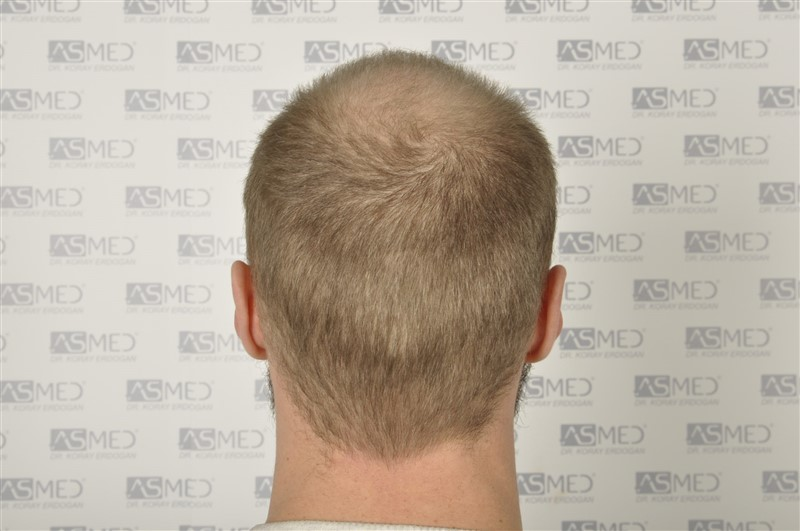 https://www.hairtransplantfue.org/asmed-hair-transplant-result/upload/Norwood5/5007-grafts-FUE/before/6.jpg