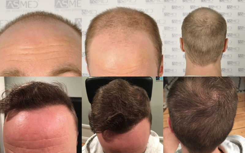 https://www.hairtransplantfue.org/asmed-hair-transplant-result/upload/Norwood5/5007-grafts-FUE/collage.jpg