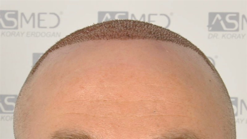 https://www.hairtransplantfue.org/asmed-hair-transplant-result/upload/Norwood5/5007-grafts-FUE/operation/1.jpg