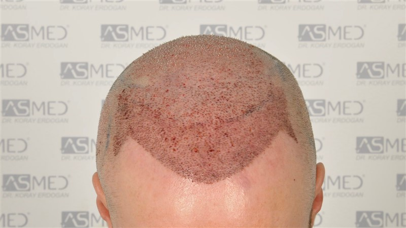 https://www.hairtransplantfue.org/asmed-hair-transplant-result/upload/Norwood5/5007-grafts-FUE/operation/2.jpg