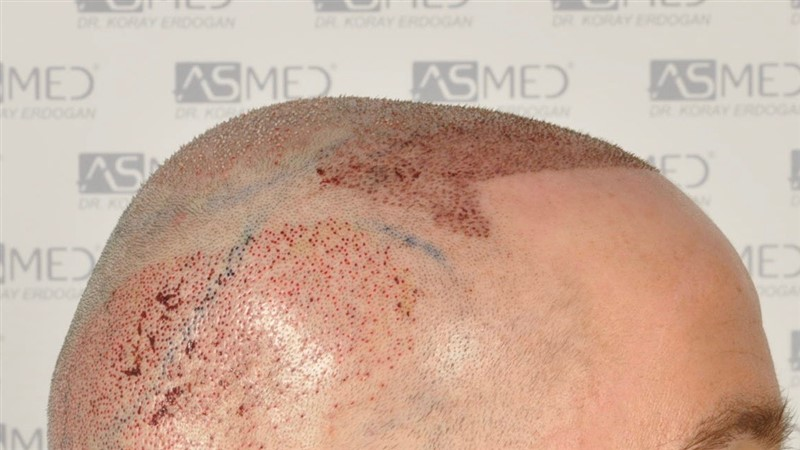 https://www.hairtransplantfue.org/asmed-hair-transplant-result/upload/Norwood5/5007-grafts-FUE/operation/3.jpg