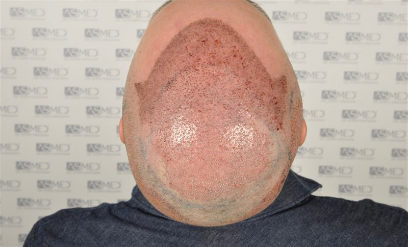 https://www.hairtransplantfue.org/asmed-hair-transplant-result/upload/Norwood5/5007-grafts-FUE/operation/5.jpg