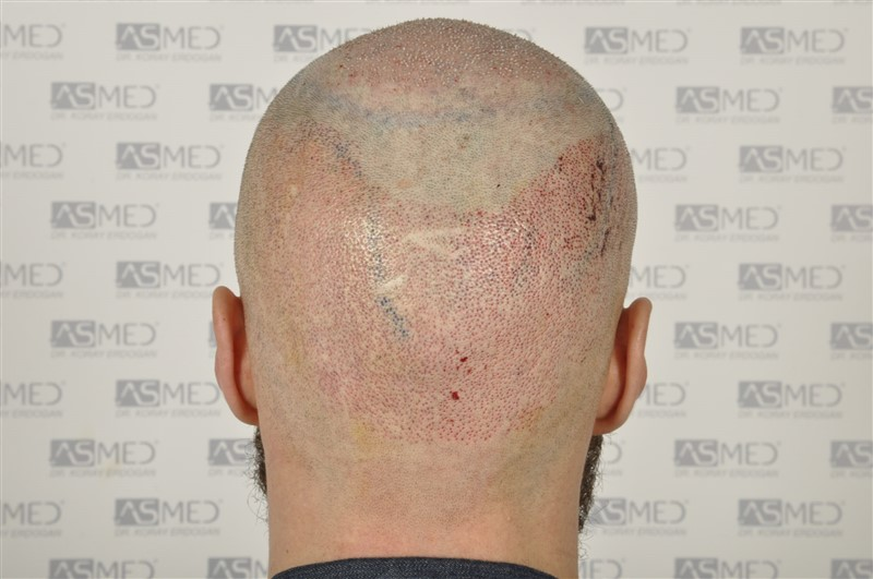 https://www.hairtransplantfue.org/asmed-hair-transplant-result/upload/Norwood5/5007-grafts-FUE/operation/6.jpg
